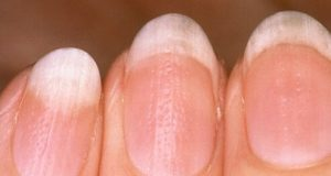 nail fungus coconut oil