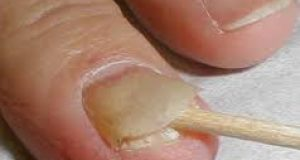 nail fungal infection black