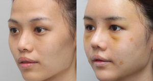 Eyelid Surgery In Korea